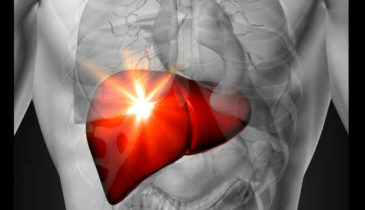 Kratom Liver Damage: Is It Really Possible?